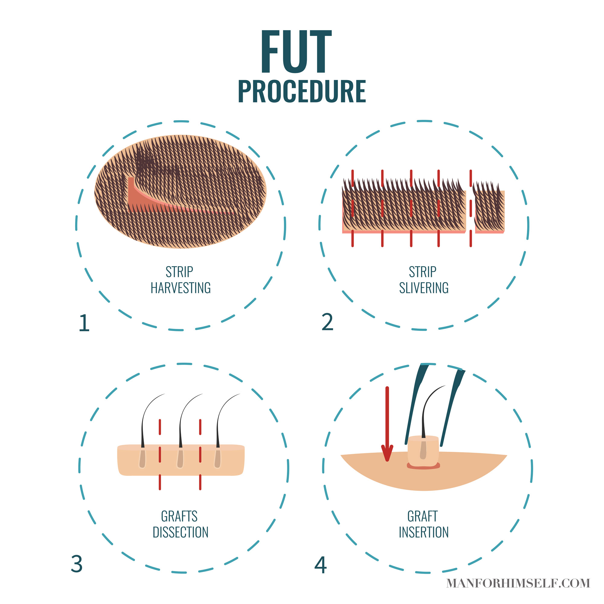 FUT-HAIR-TRANSPLANT-GRAPHIC