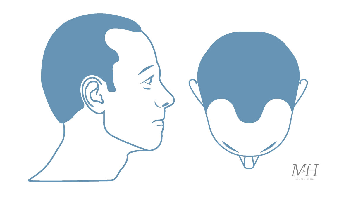Stage-3-Hair-Loss-Stages-Man-For-Himself