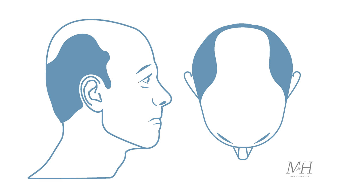 Stage-6-Hair-Loss-Stages-Man-For-Himself