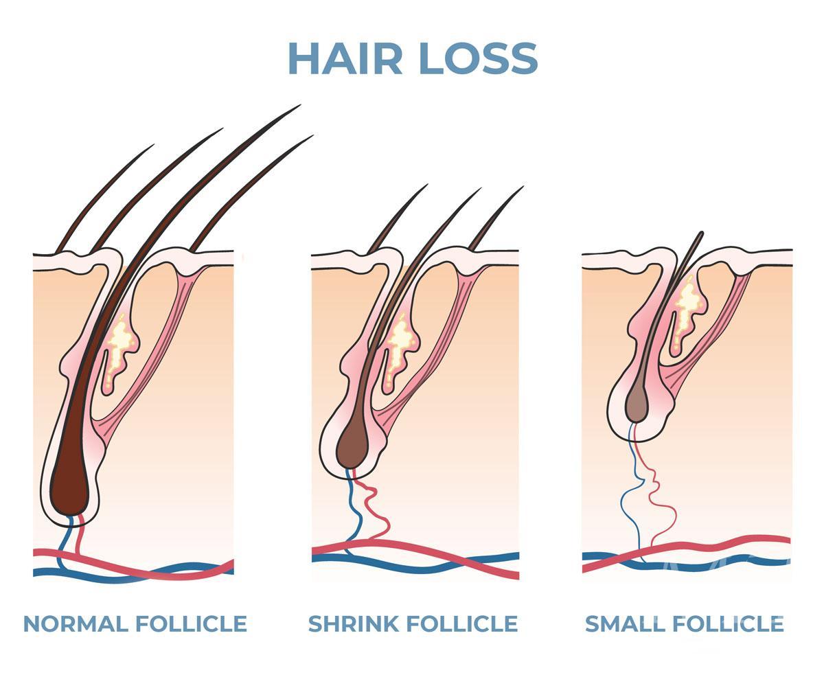 HAIR-LOSS-FOLLICLE-MAN-FOR-HIMSELF