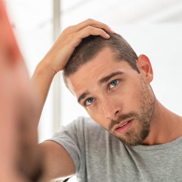 Hair Loss Treatments Explained | Minoxidil, Finasteride, Biotin, DHT Blocking