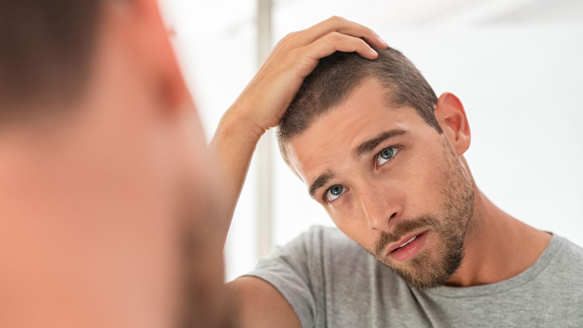 Hair Loss Treatments Explained Minoxidil Finasteride Biotin Dht Blocking Man For Himself